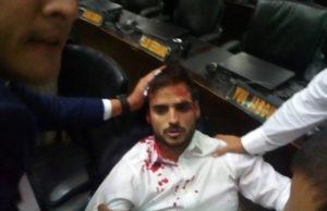 国会に侵入した大統領派に襲われ、負傷したベネズエラの議員もしくは国会職員と思われる人(Asamblea Nacional VE)