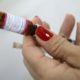 《世界保健機関》ブラジル渡航者に黄熱病ワクチン接種を勧告=20州や連邦直轄区が対象